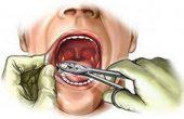 Что делать если, после удаления зуба болит десна — советы от стоматологов