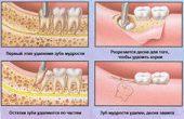 Что делать после удаления зуба — советы стоматологов